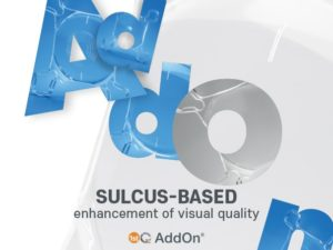 Supplement Sulcus-based enhancement of visual quality